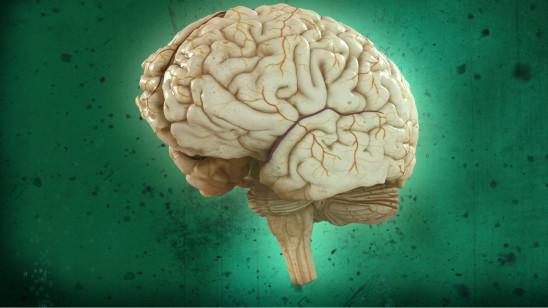 Sendungsbild: Brain Games